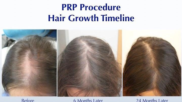 How Long Does PRP Take to Work for Hair Loss?