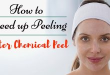 How to Speed Up Peeling After Chemical Peel