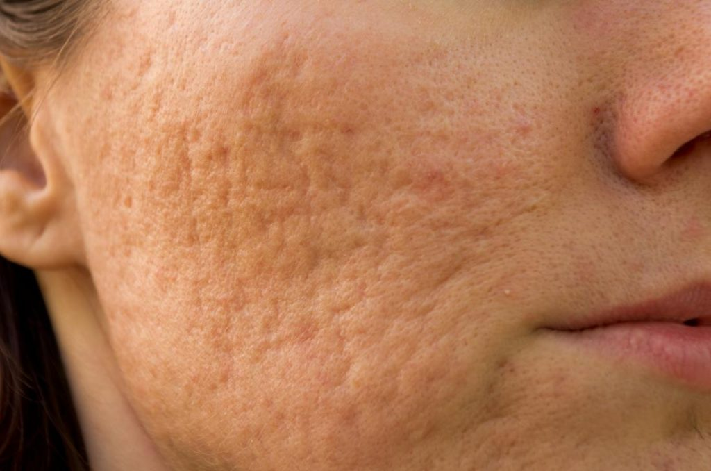 What Causes Skin Indentations on Face