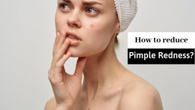 How to Reduce Redness of Pimples in a Hour?