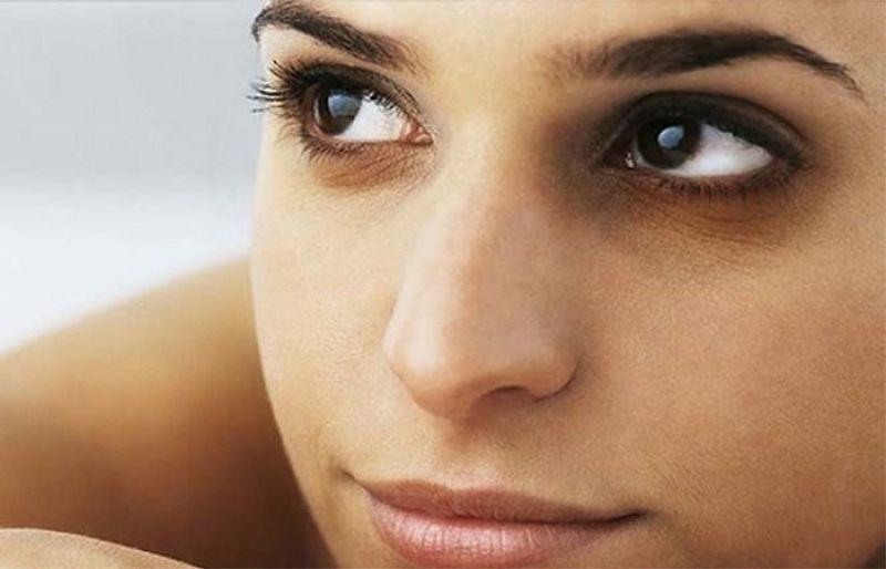What Causes Dark Skin Around the Eyes?