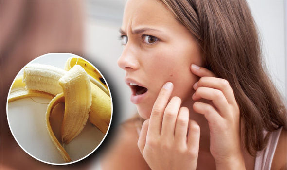 What Does Banana Peel do for the Face?
