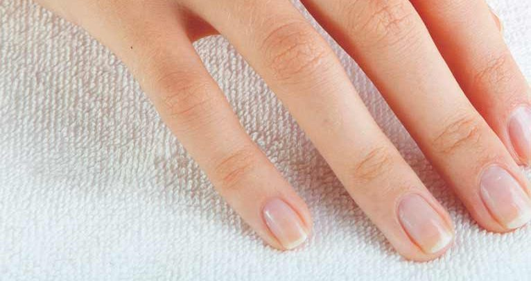 What Vitamin Deficiency Causes Nails to Peel?