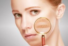How to Cure Melasma from the inside?