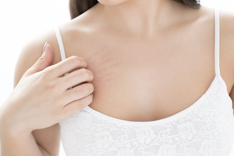 How to Get Rid of Rash Between Breasts