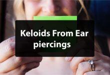 How to Prevent Keloids on Ear Piercings?