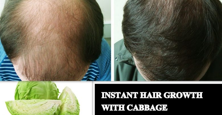 How to Use Cabbage for Hair Growth?