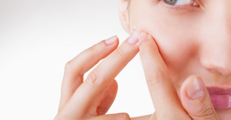 Should You Pop Pimples When They Are White?