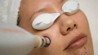 How to Take Care of Face after Laser Treatment?