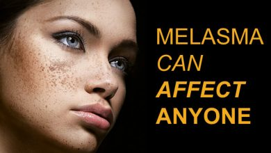 Is Lemon Juice Good for Treating Melasma?