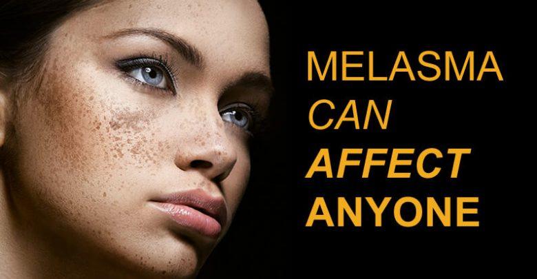 Is Lemon Juice Good for Treating Melasma?