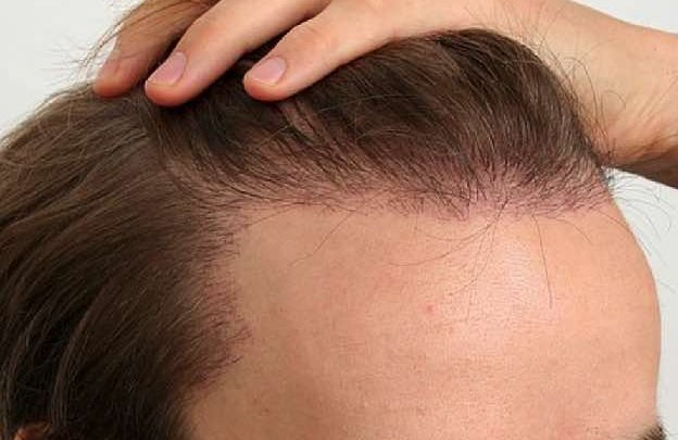 Is Microneedling Good for Hair Growth?
