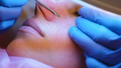 How Do Dermatologists Remove Blackheads?