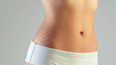How to do microneedling on stretch marks?