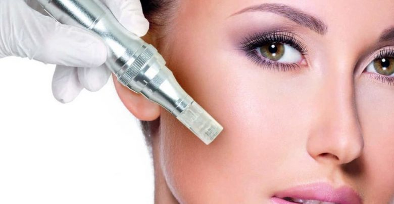 How to numb face for microneedling?