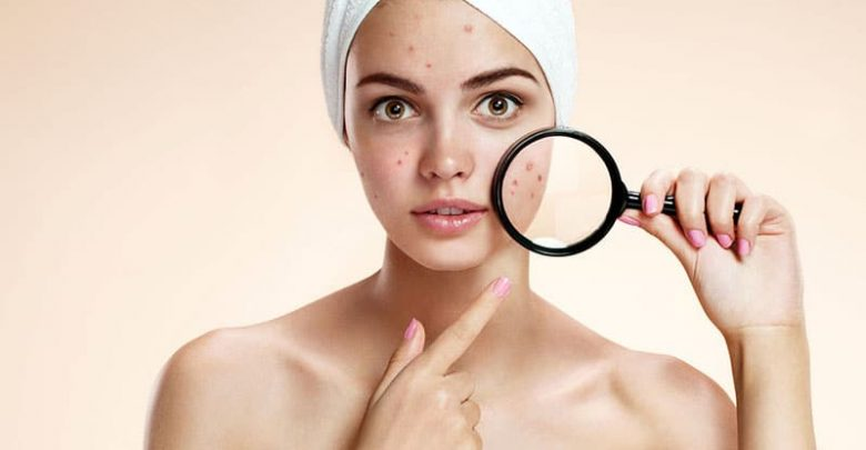Will sanitizer cure pimples?