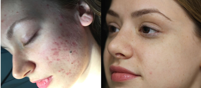 Is Vampire Facial Good for Acne Scars?