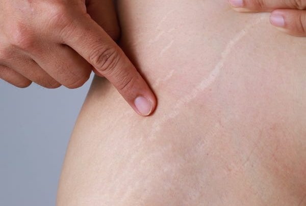 Why do my old stretch marks itch?